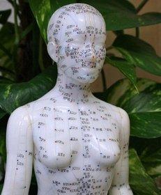 Akupunktur, Nadeln, Medizin, Energie