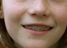 Zahnspange, Zahnarzt, Kieferchirurg