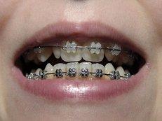 Zahnspange, Kieferorthopäde, Brackets, Kinderzahnheilkunde